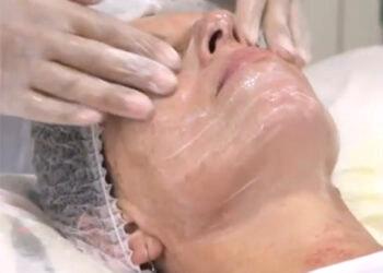 curso-acupuntura-estetica-presencial-Manresa