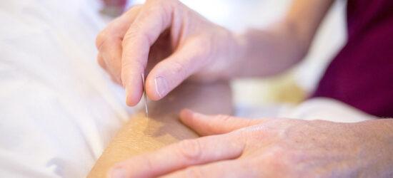 curso-acupuntura-online
